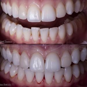 otbelivanie_zubov_stas_belous